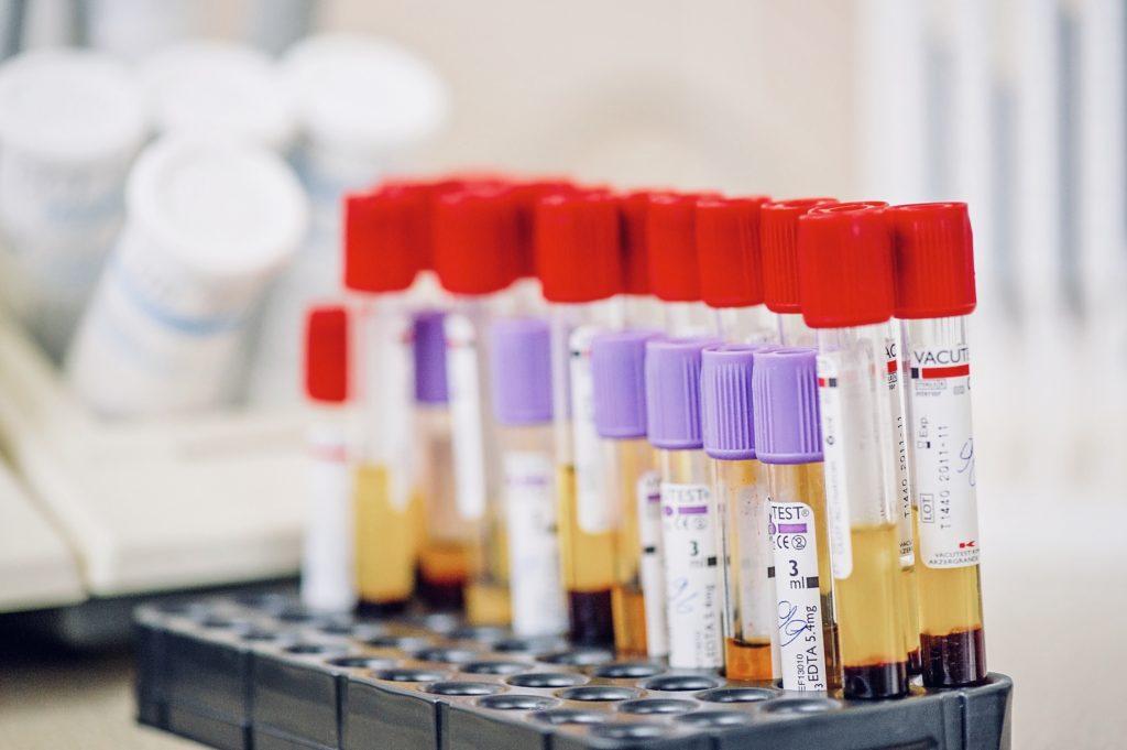 vzorky na vyšetření krví